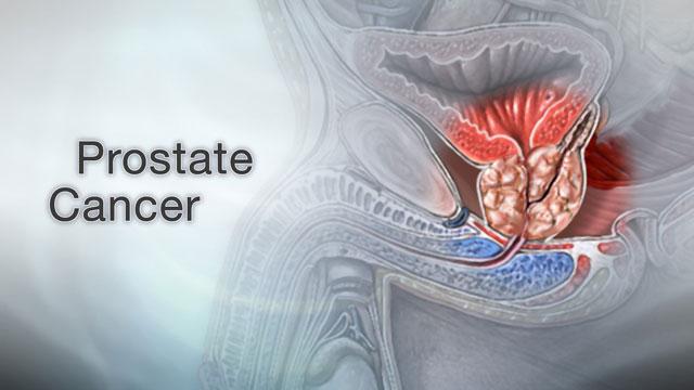 При метастазировании рака простаты в кости симптомы будут включать боли в тех костях, где располагается процесс.