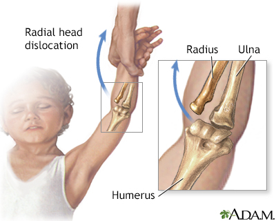 Radial head injury