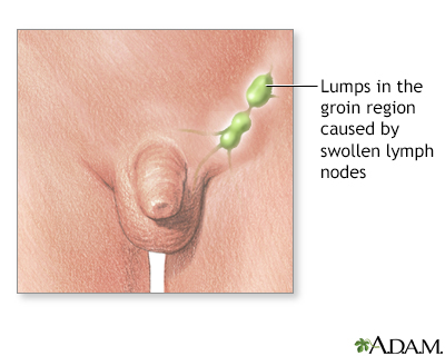 Genital herpes and swollen lymph nodes 1